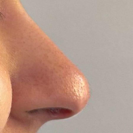 nose job 2