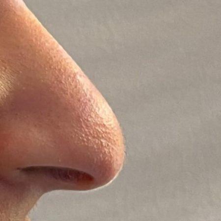 nose job 3