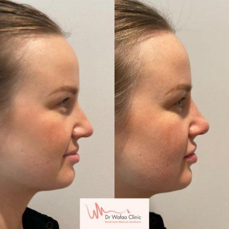 nose transformation 2