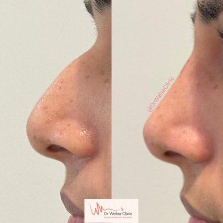 nose transformation